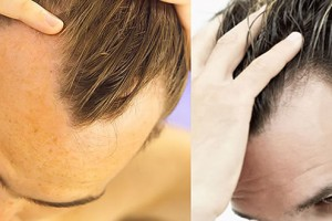 Men's Grooming – Handling Hair Loss